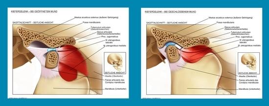 Wissenswertes rund um die Kiefergelenksentzündung