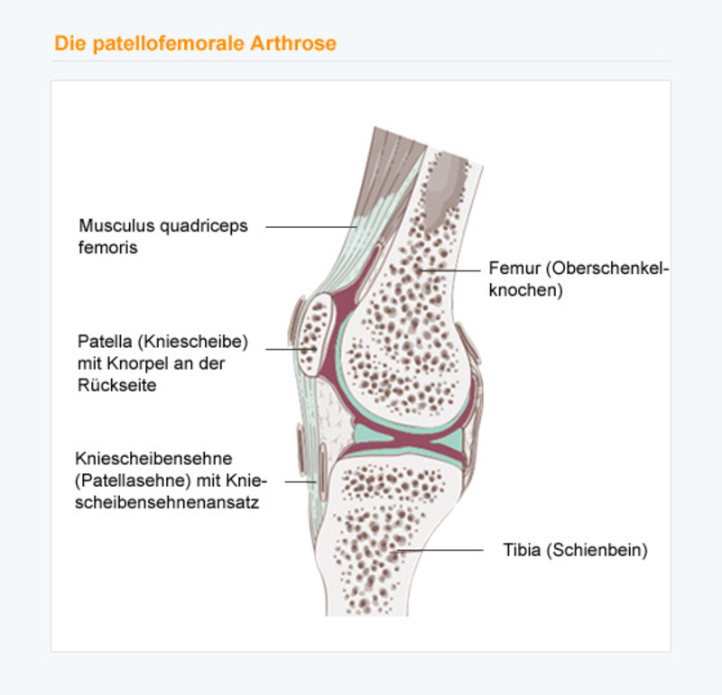 konservative therapie arthrose